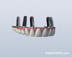 implant-retained-upper-denture